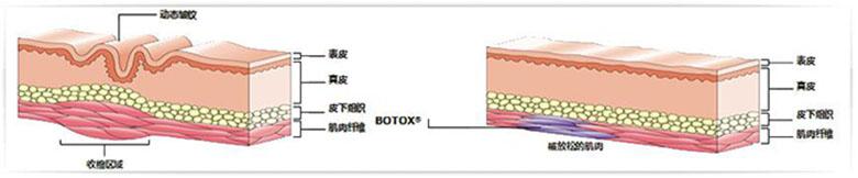 肉毒素除皱2.jpg