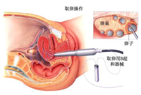 日本试管婴儿取卵过程