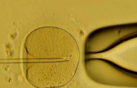 日本微刺激技术让卵巢早衰患者的试管婴儿成功率大大提高