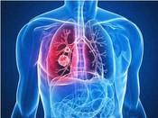 NCCN新肺癌指南重磅出炉 靶向治疗内容全收录