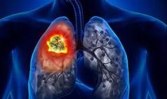 科学家发现肺癌干细胞代谢弱点 找到潜在靶向药物