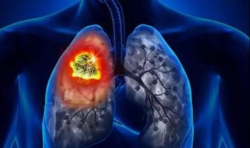 科学家发现肺癌?#19978;?#32990;代谢弱点 ?#19994;?#28508;在靶向药物