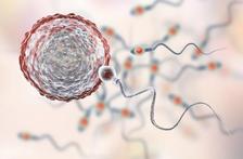 泰国试管婴儿取卵后避免卵巢过度刺激综合症的方法有哪些