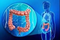 發現:結直腸癌新誘因,抗癌新征程和新希望!!