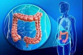 发现:结直肠癌新诱因,抗癌新征程和新希望!!